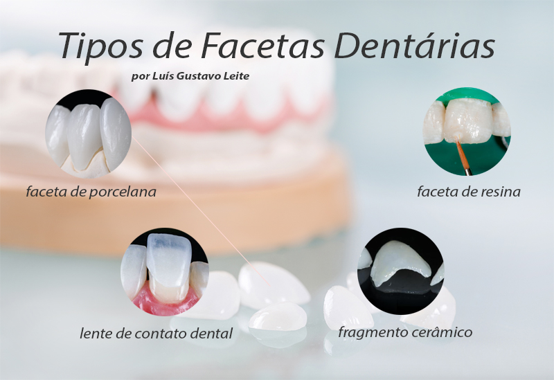 faceta dentaria info