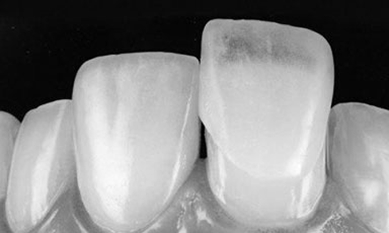 faceta dentaria lente de contato dental indicações