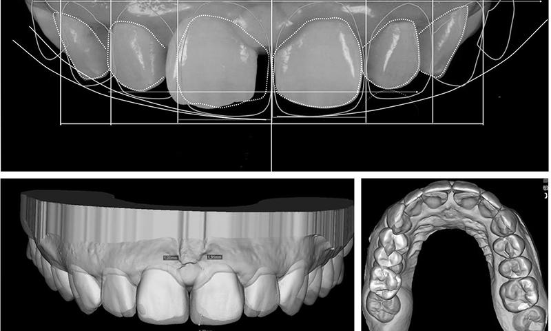 faceta dentaria simulação