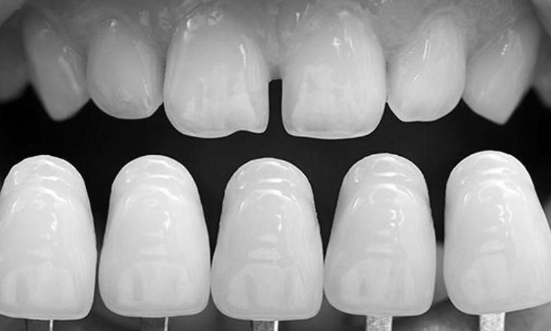 lente de contato dental fechamento de diastema