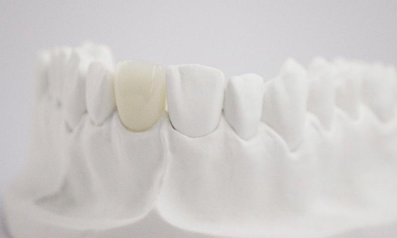 prótese dentária em porcelana pura