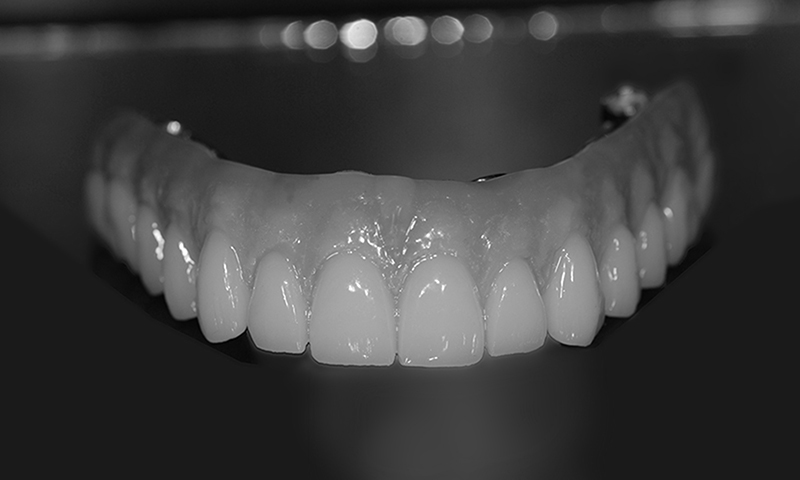 prótese protocolo em porcelana