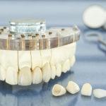 Preço da prótese dentária fixa em porcelana varia conforme material.