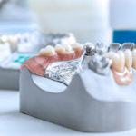 Prótese dentária móvel: lidando com a dor e dificuldade para mastigar.