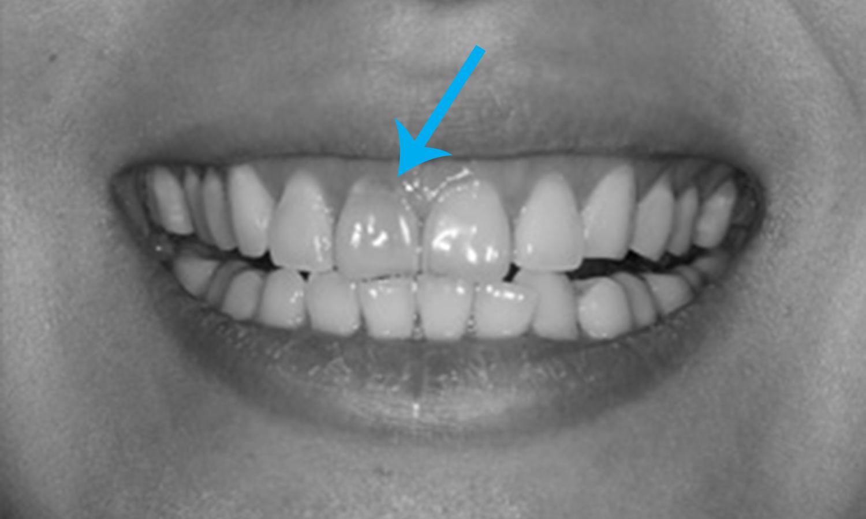 dente escuro por trauma ou reabsorção interna faceta dentária