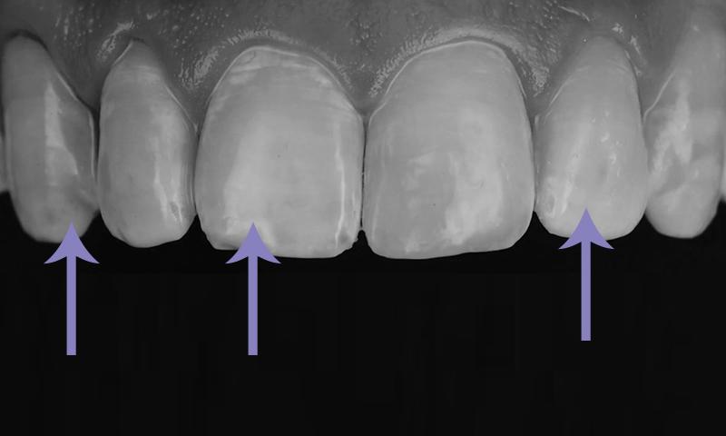faceta de resina dentes manchados por antibióticos