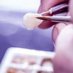 Faceta dentária: recupere dentes escurecidos pós tratamento de canal.