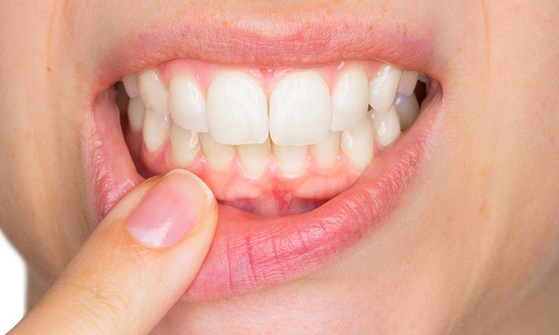 gengiva escurecida e escura cirurgia prótese dentária enxerto gengival