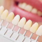 Lente de conta dental: especialista em Porto Alegre dá dicas essenciais.