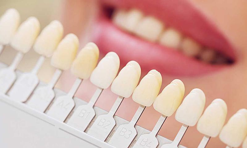lente de contato dental dentista