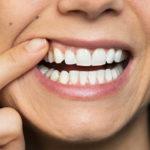 Gengiva escurecida em implante dentário pode ser recuperada.
