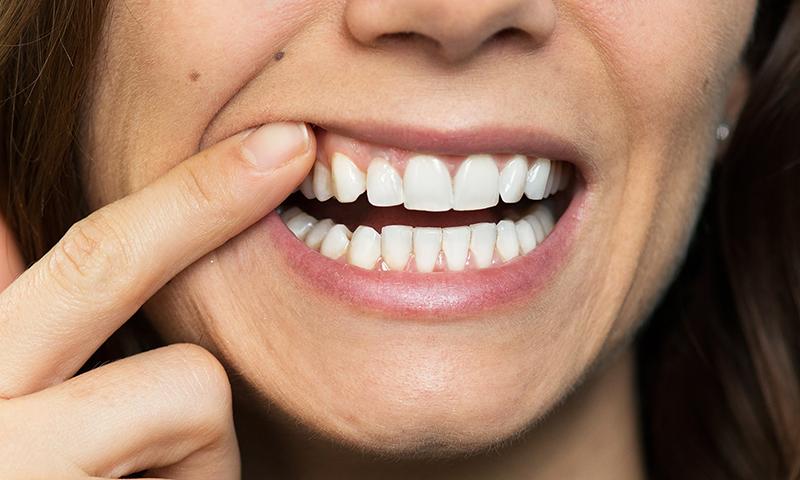 gegiva escura e cinza prótese e implante dentário post blog