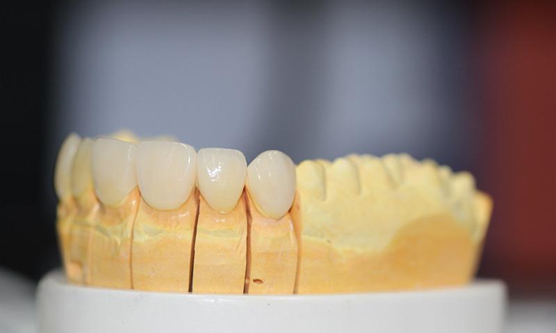 prótese dentária em porcelana