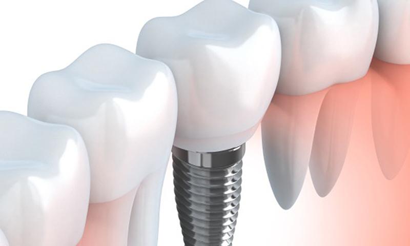 raiz fraturada com fratura e implante dentário tratamento