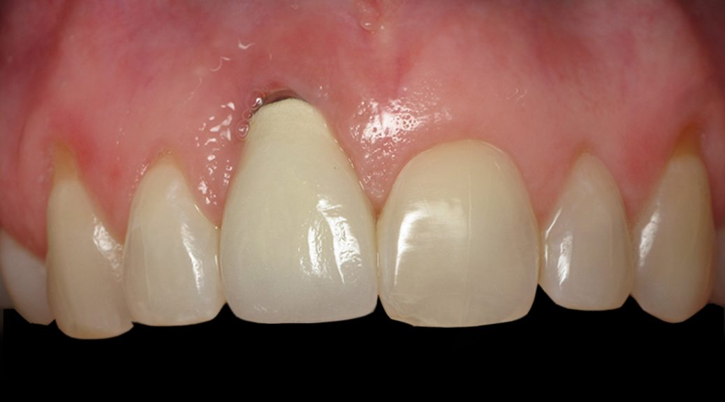 retração gengival implante dentário post blog