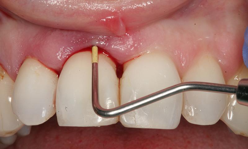 retração gengival implante dentário sangramento