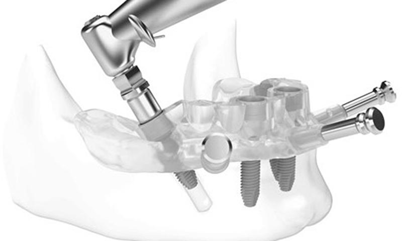 cirurgia sem cortes e pontos implante dentário post blog