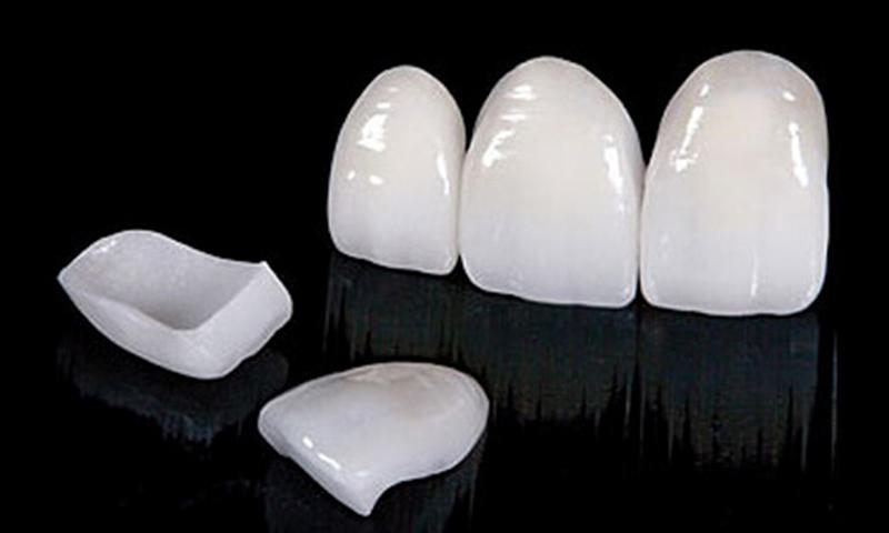 lente de contato dental durabilidade post blog
