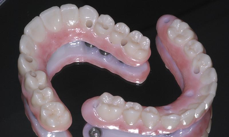 dentadura fixa sobre implante dentário zircônia e porcelana
