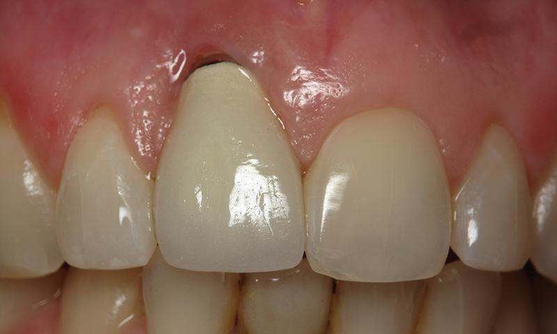 enxerto gengival cirurgia plástica prótese dentária
