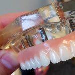 Dentadura fixa: descubra quantos implantes dentários são necessários à técnica.