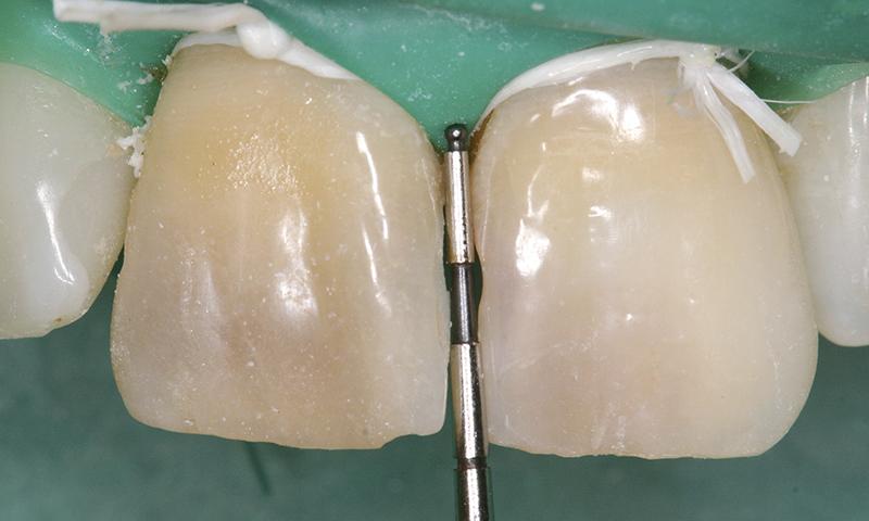 dente escurecido e escuro tratamento