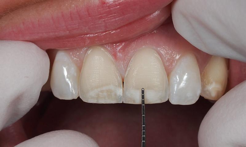 dente escurecido faceta em resina