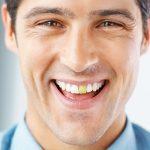 Dente escurecido: restauração em resina pode recuperar a cor.