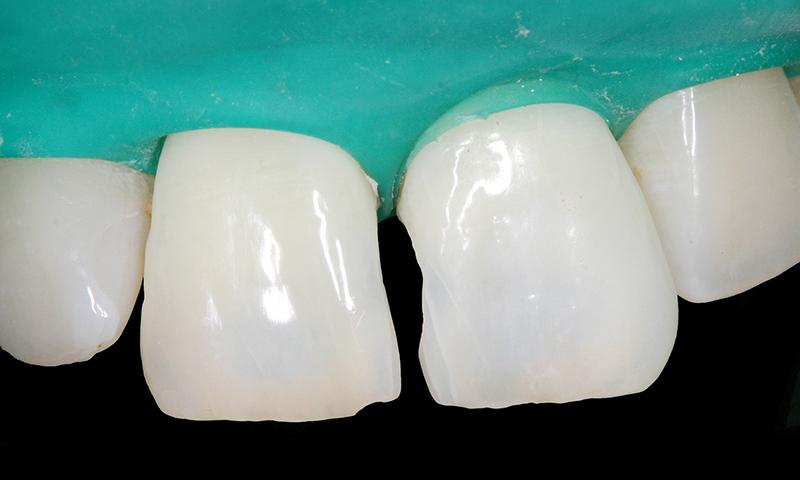 dentes escurecido clareamento dental caseiro