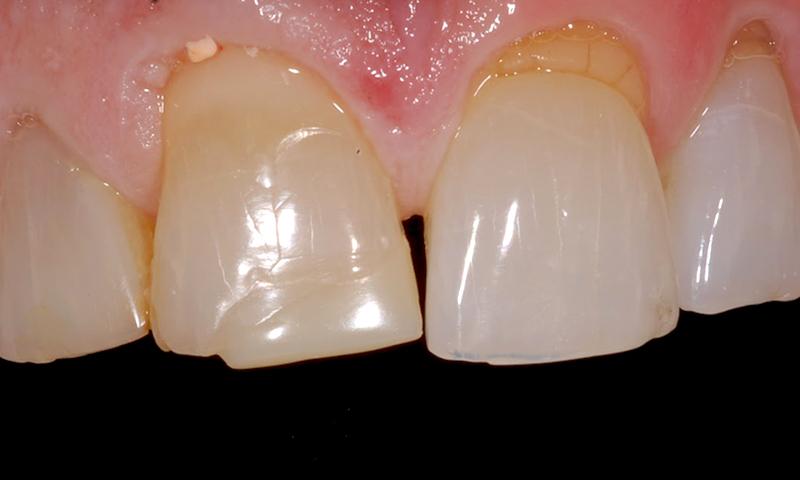 restauração dentária em resina e bruxismo