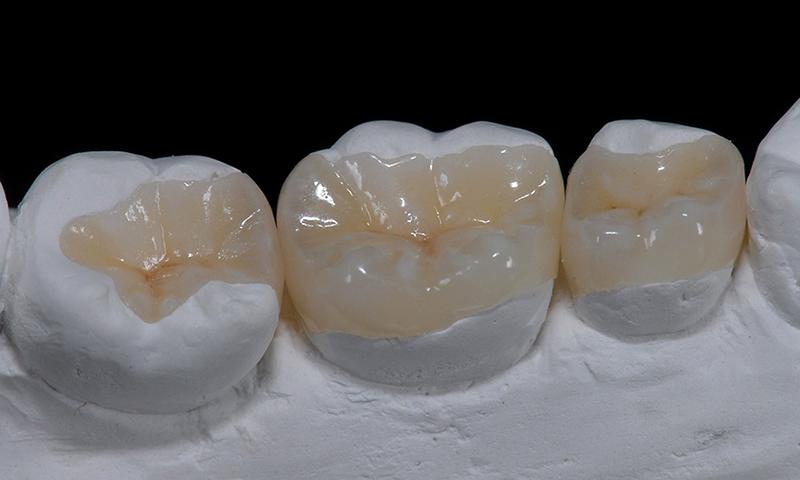 restauração dentária em porcelana