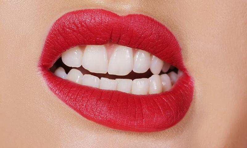 restauração em porcelana recuperar desgastes dentários pelo bruxismo post blog