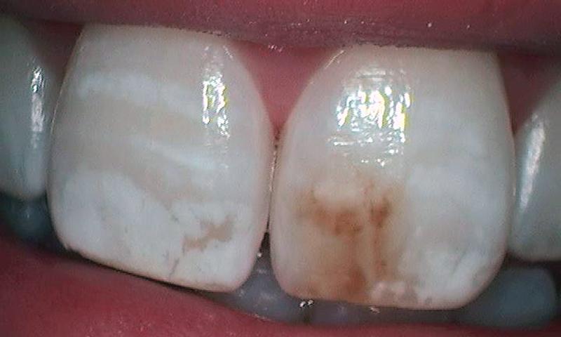 dente manchado por antibiótico microabrasão estética