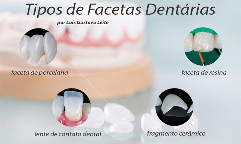 faceta dentária laminada tipos