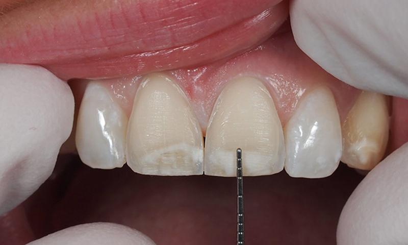 faceta em porcelana desgastes dentários odontologia estética