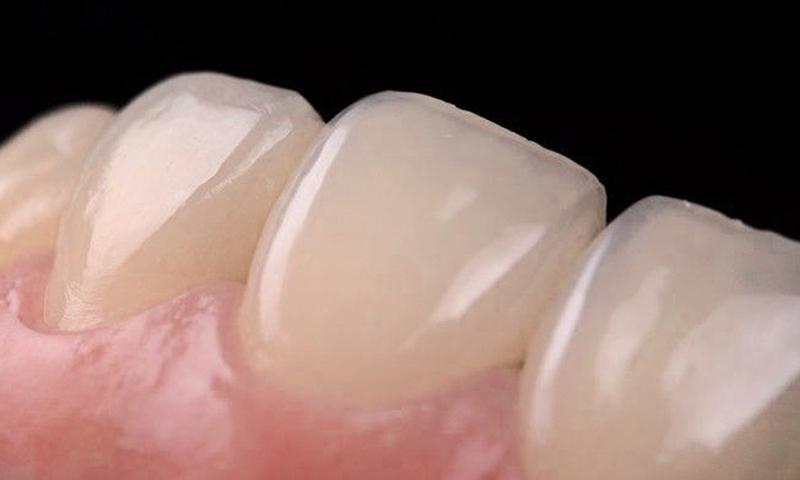 faceta em resina estética dental