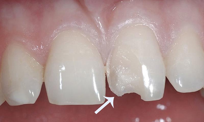 fragmento cerâmico para substituir lente de contato dental