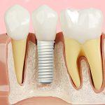 Implante dentário em zircônia traz estética gengival mais natural.