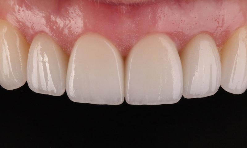 lente de contato dental e microabrasão do esmalte post blog