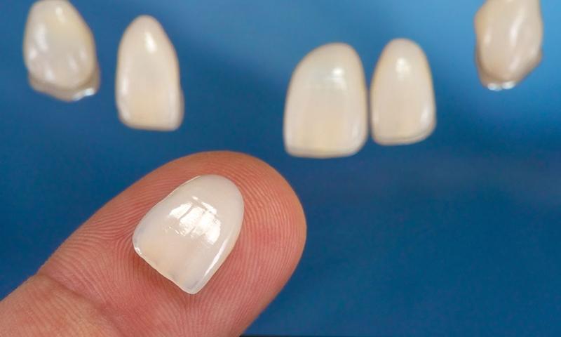 lente de contato dental melhor material