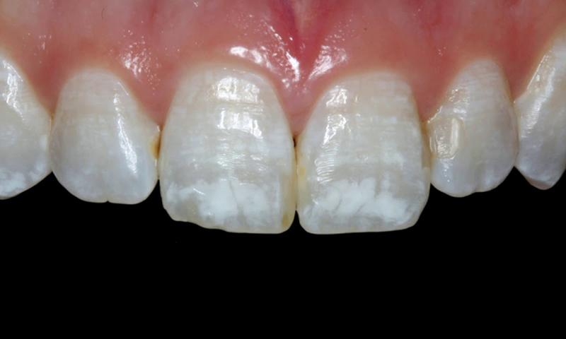 manchas brancas e esbranquiçadas lente de contato dental