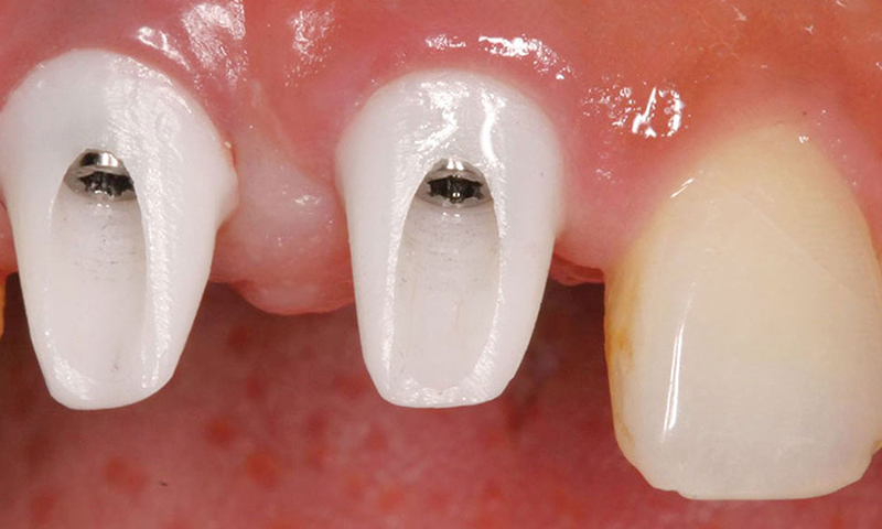 pino em zircônia para implante dentário