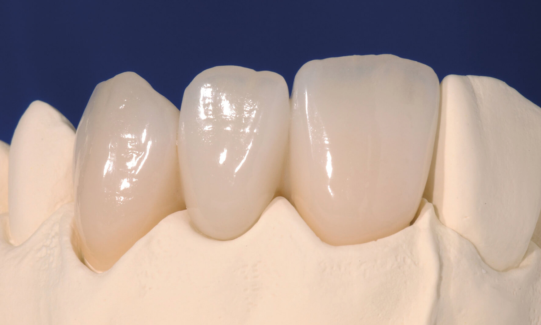 prótese dentária fixa em material semelhante à lente de conato dental