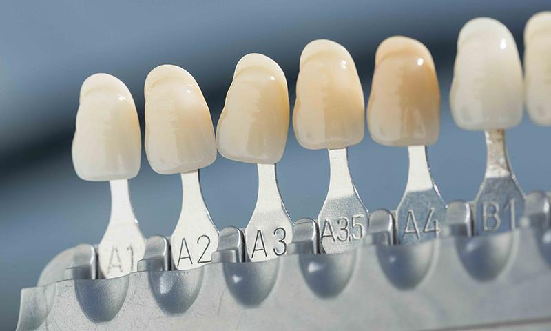 prótese dentária fixa em porcelana seleção de cor