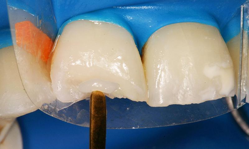 restauração dentária em resina em dentes anteriores