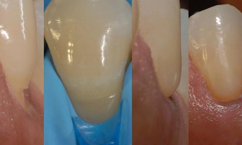 retração gengival restauração dentária em resina