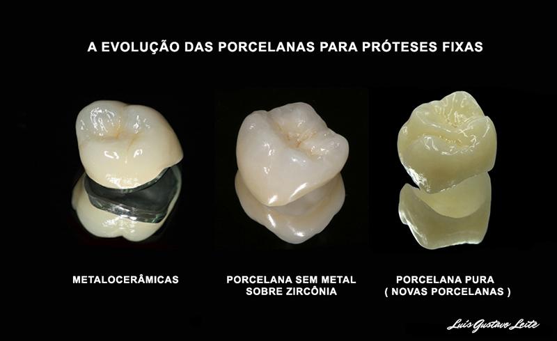 tipos de prótese dentária fixa para odontologia estética