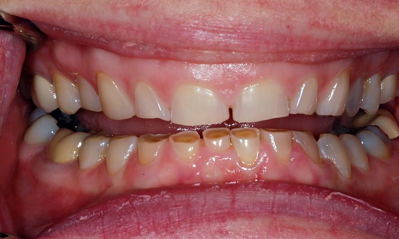 dentes pequenos bruxismo tratamento