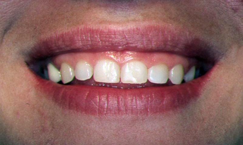 dentes pequenos cirurgia plástica gengival