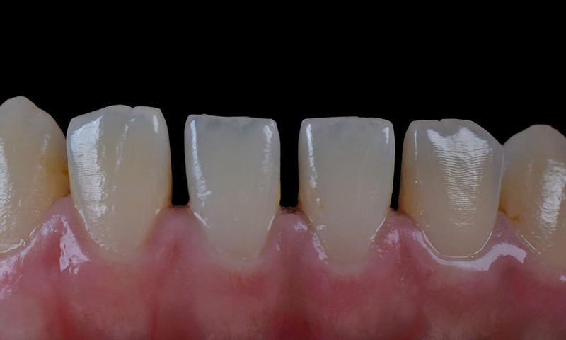 dentes pequenos lentes de contato dental